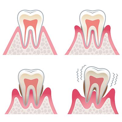 歯周病になるとこんな症状が見られます