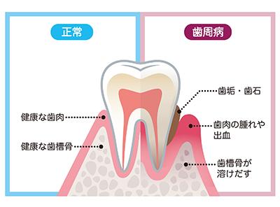 歯周病は感染症です