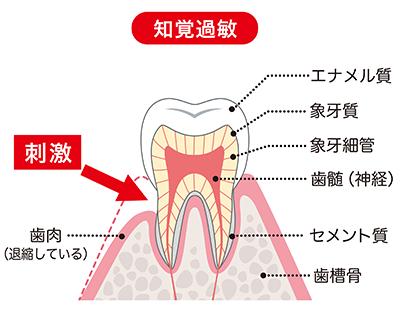 むし歯予防と治療