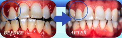 歯ぐきの引き締め