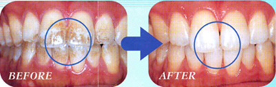 きれいな歯を保つ