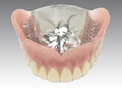金属の義歯