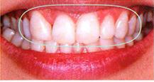 歯(天然歯)とコンポジットレジン製修復物の色調改善に